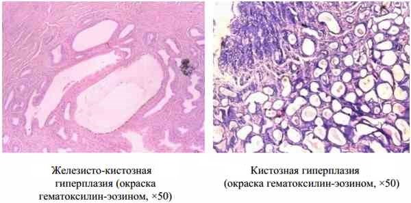Чем опасна эндометрия матки
