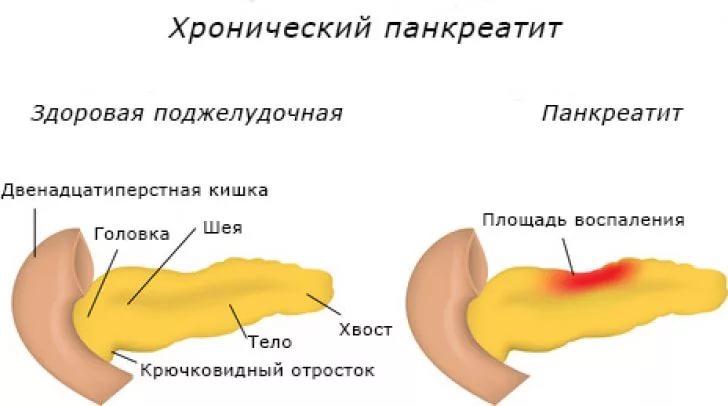 Показательная картинка панкреатита