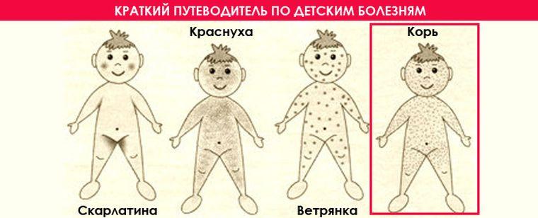 отличие кори от других инфекций