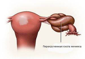 осложнения кисты