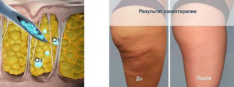 озонотерапия для тела